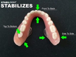 how to keep lower denture in place