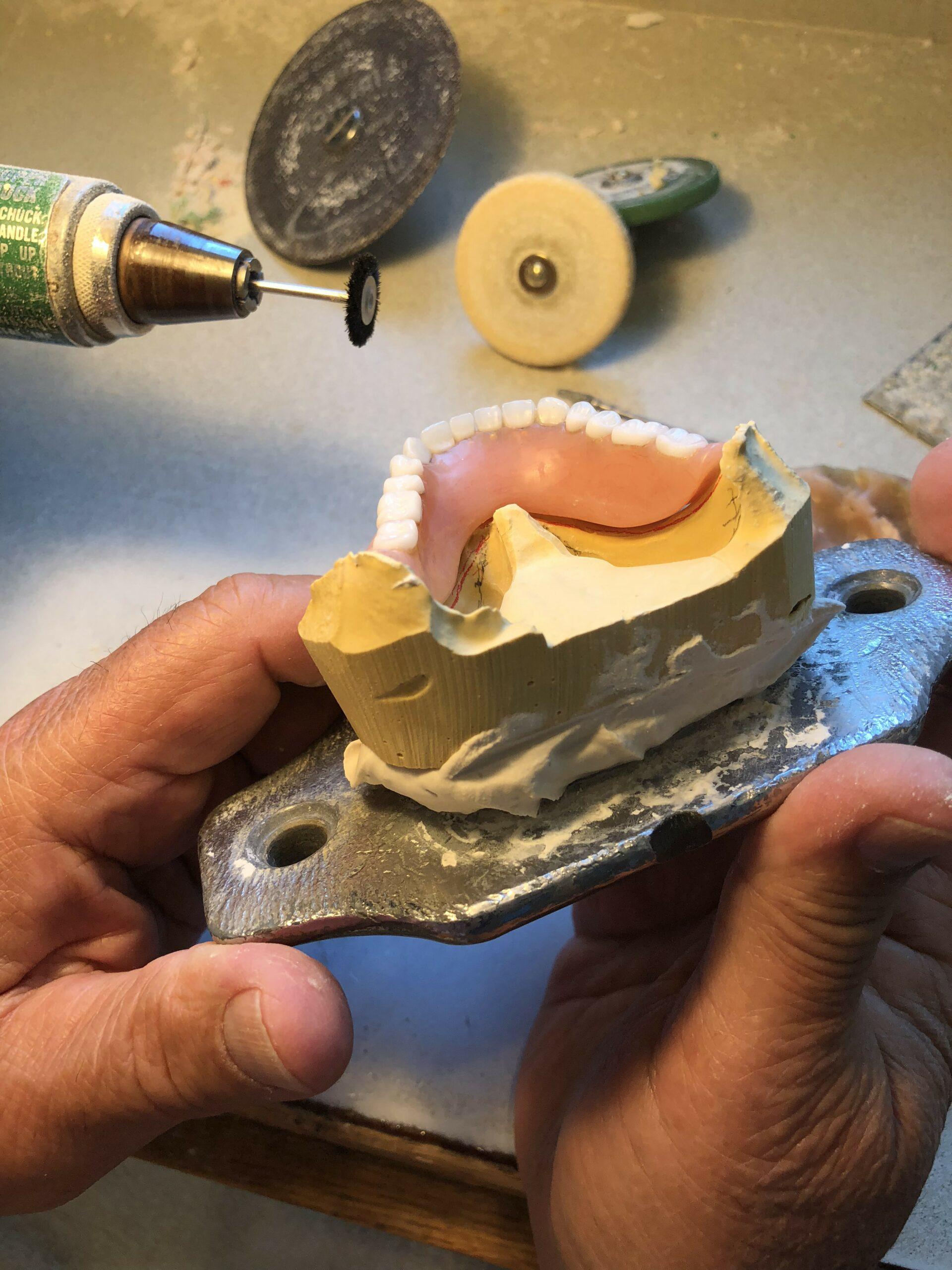 lower denture reline