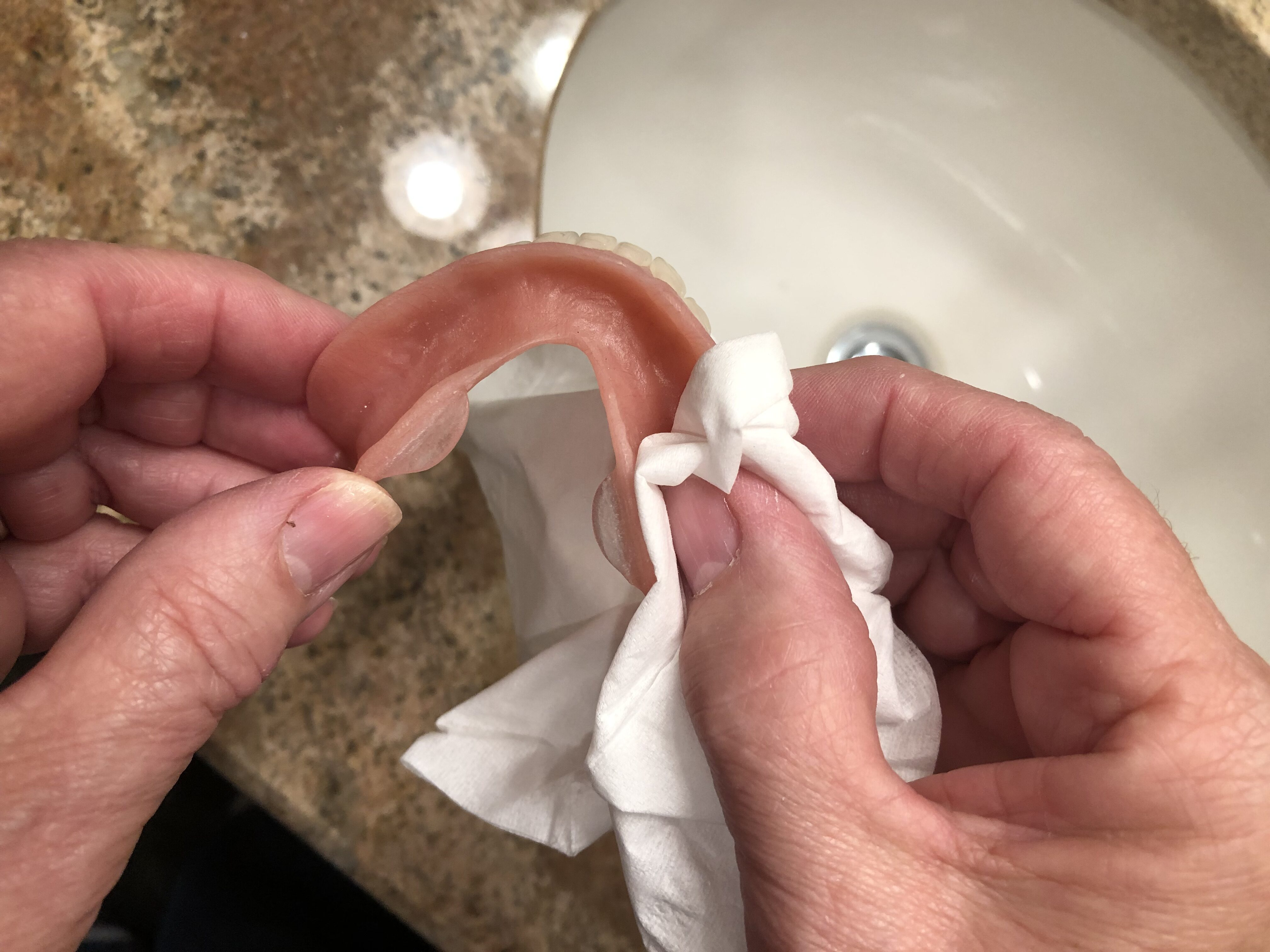 denture sore spot kit