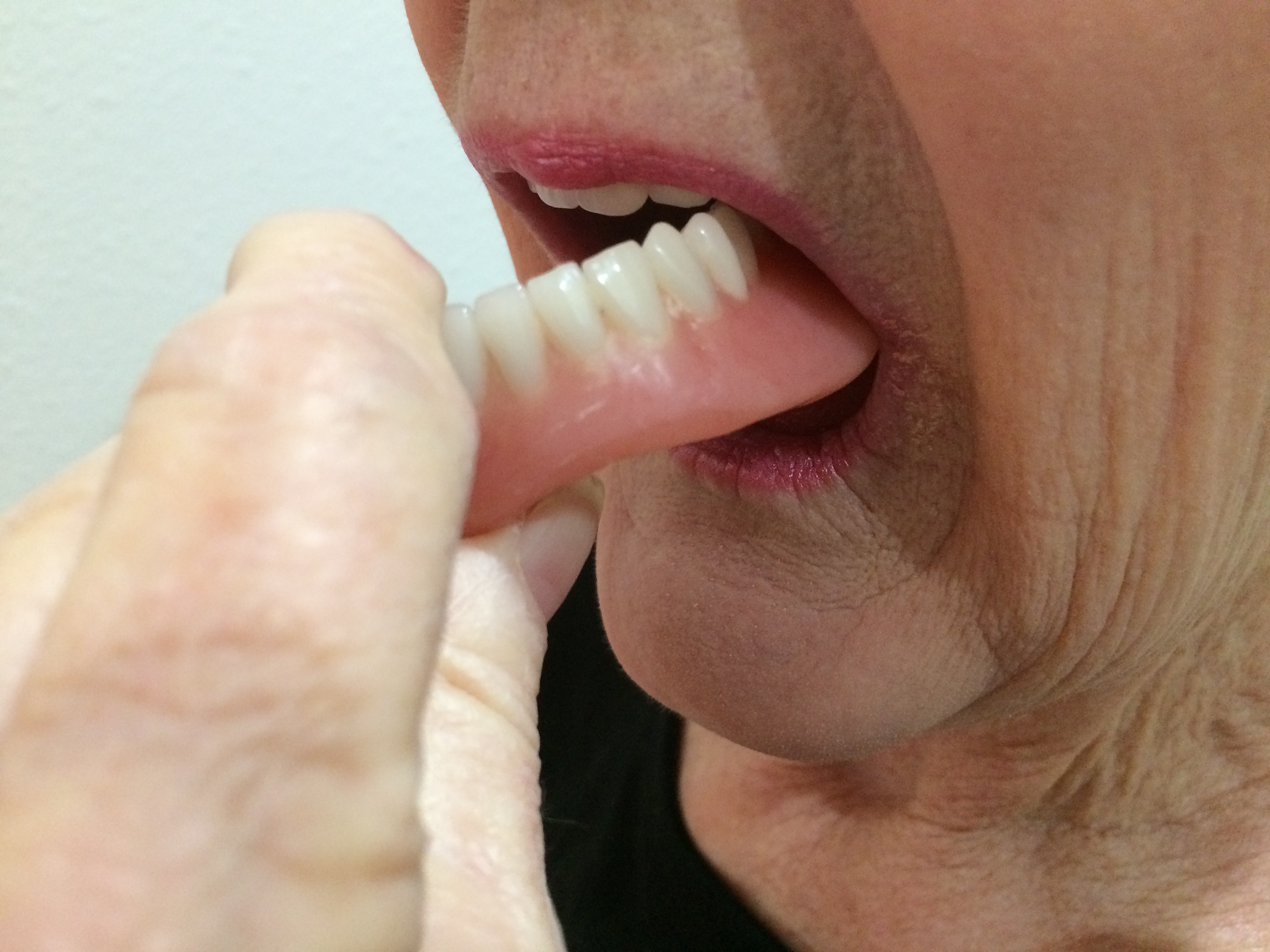 how to remove denture sore spots