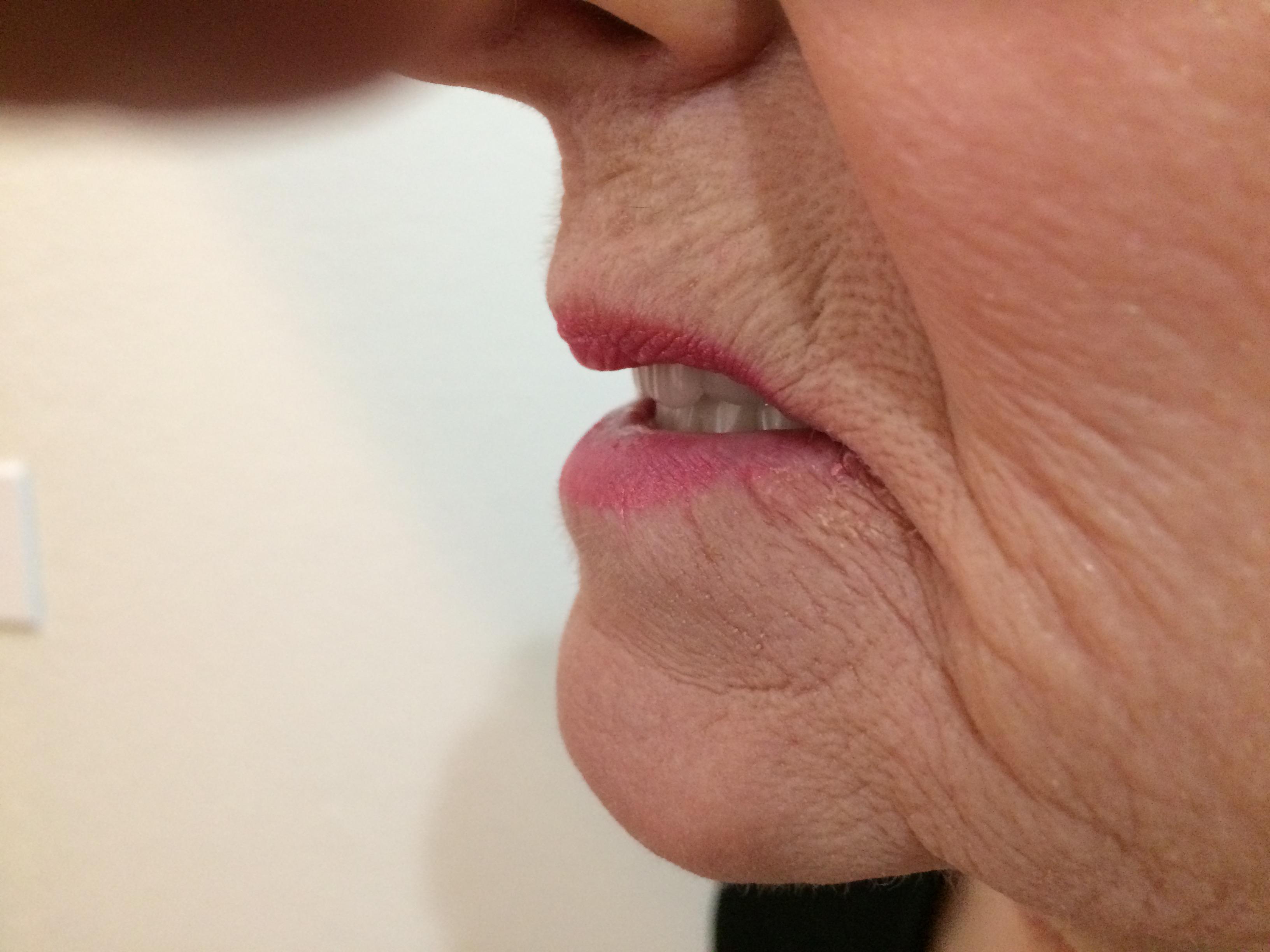 denture sore spot find and remove