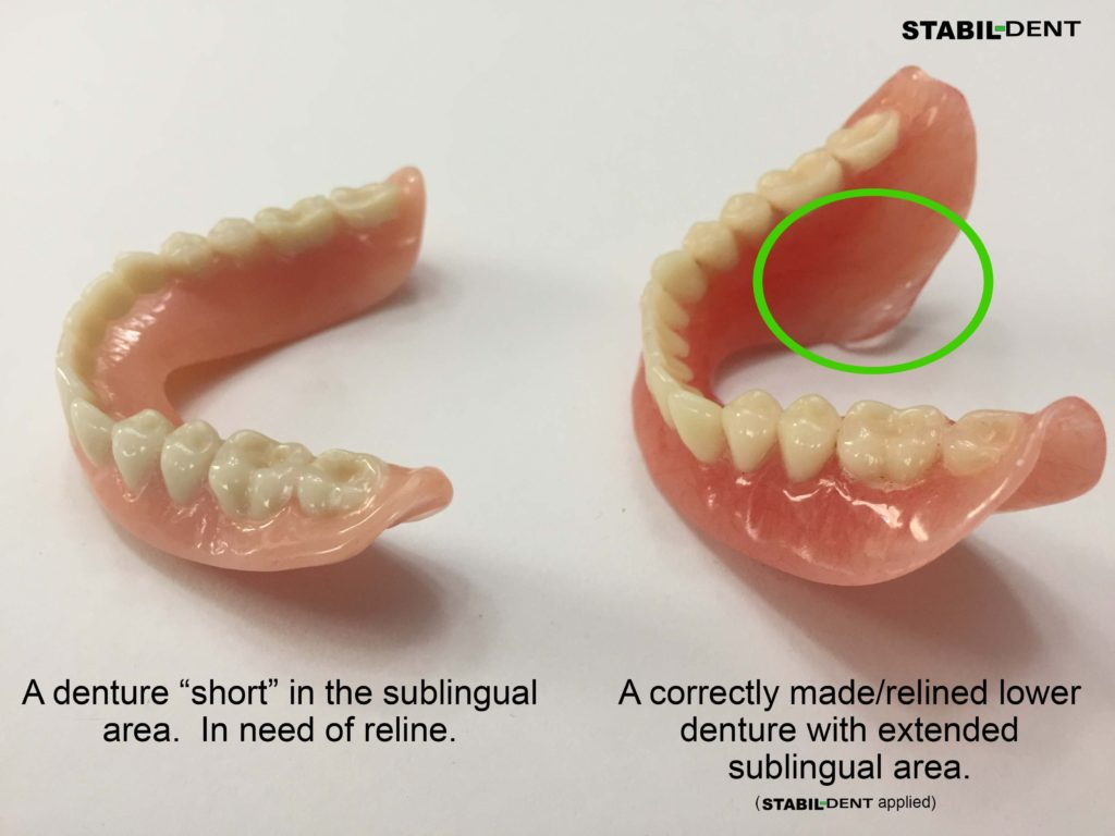 What you need to know to get a great denture reline stabil dent denture reline solutioingenieria Image collections