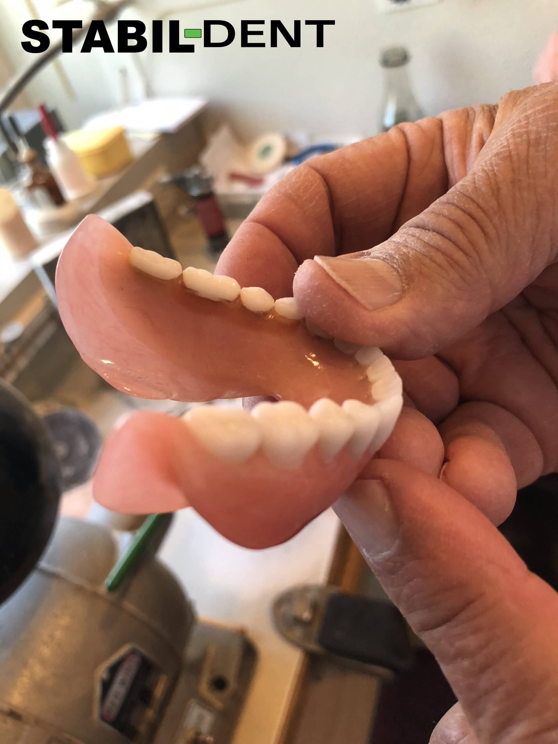 a well made lower denture should function without problems