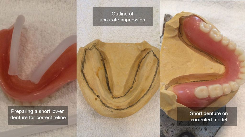 lower denture reline
