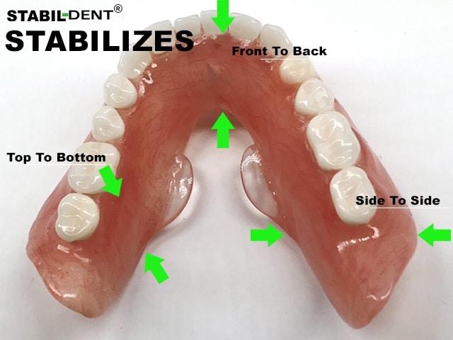 how lower denture stabilizers work